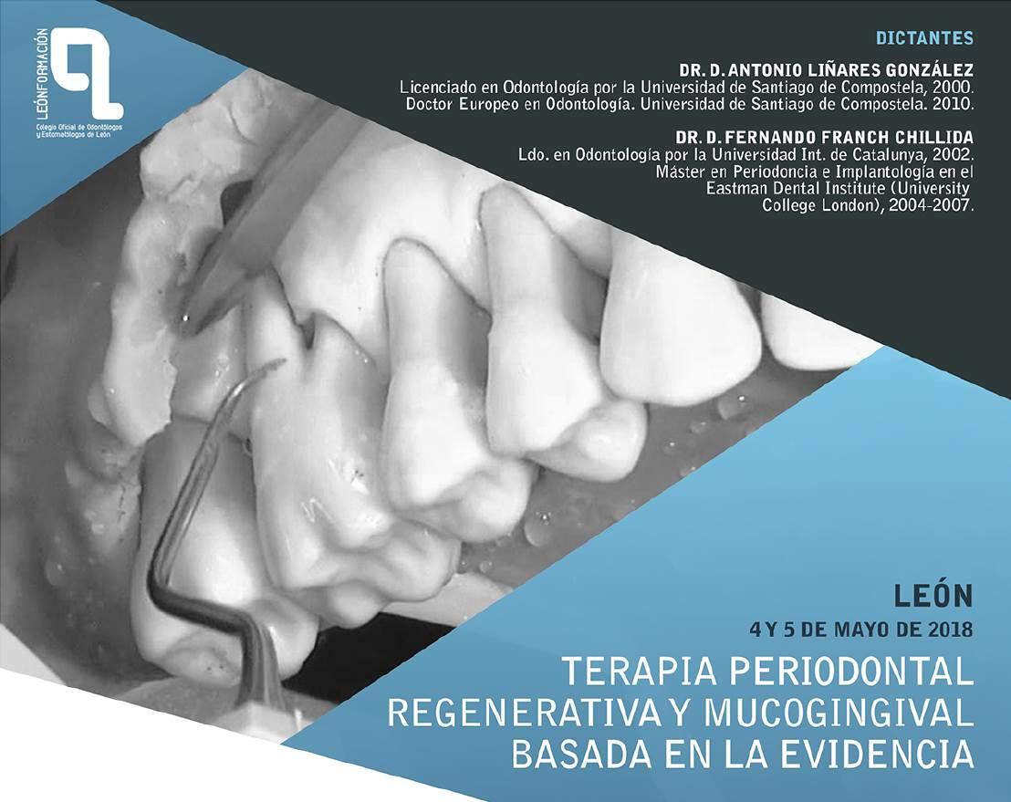 Curso Terapia periodontal regenerativa